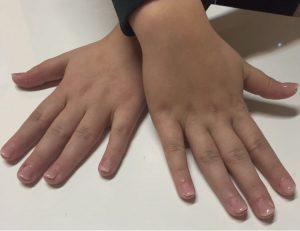 hande1