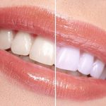 natural-zahn-bleaching